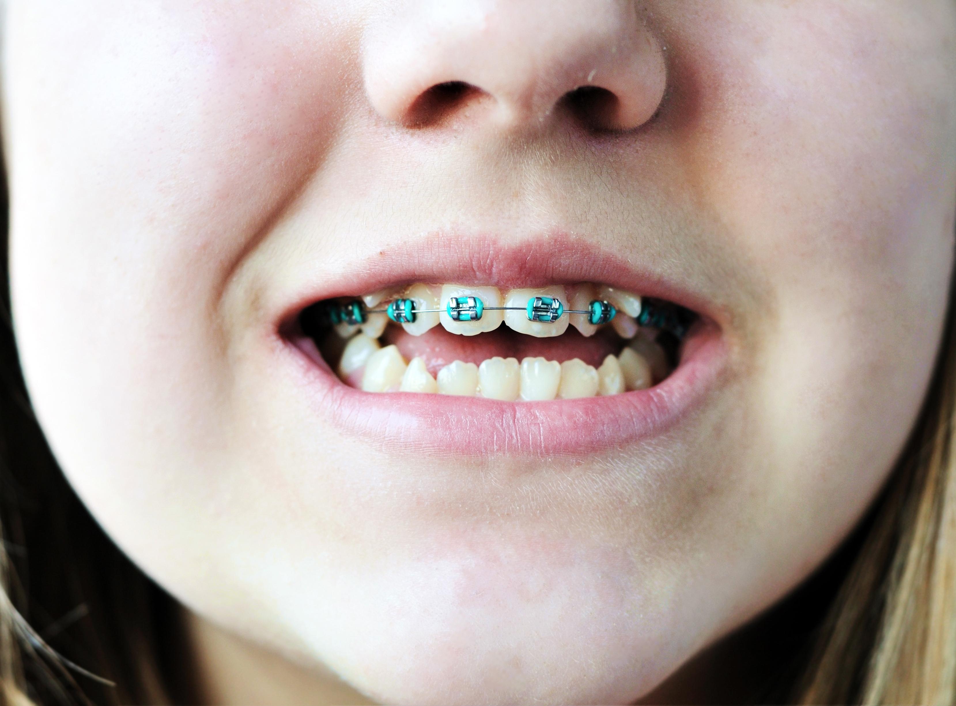 mangler blivende tænder